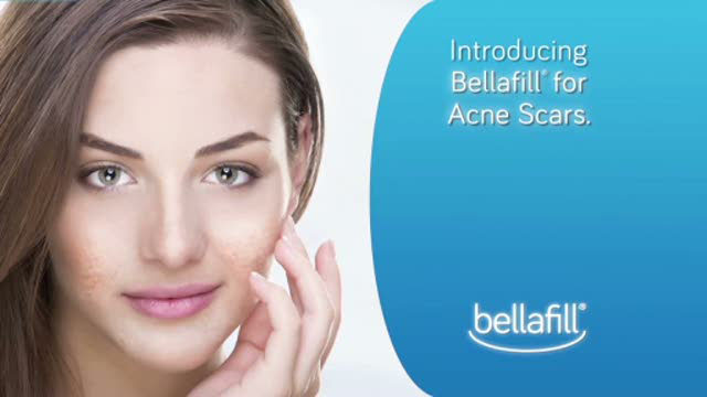 Bellafill is the only filler on the market approved in the U.S. for the correction of acne scars.