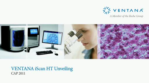 VENTANA iScan HT slide scanner: the most powerful high-throughput slide scanner in anatomic pathology today