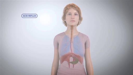 Video highlights the causes of acid reflux into the throat and lungs, typical symptoms, current treatments, how the REZA BAND(R) UES Assist Device provides relief for patients suffering from this widespread condition.