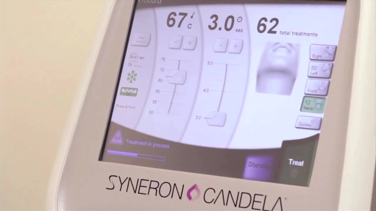 Profound(TM) is an innovative radiofrequency device clinically proven to improve facial and neck wrinkles without surgery.